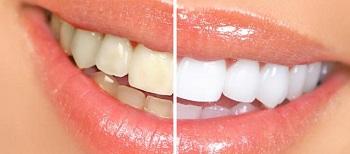 Какой вид чистки зубов эффективнее – ультра звук или AirFlow?