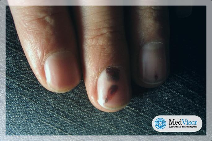 Как выглядит ушиб ногтя