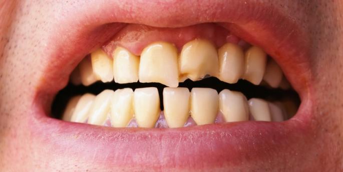 треснувший зуб