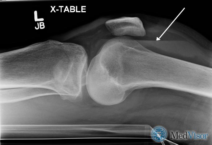 Липогемартроз, наблюдаемый у человека с незначительным переломом плато большеберцовой кости. Стрелка указывает на уровень жидкости между верхним жировым компонентом и нижним компонентом крови.