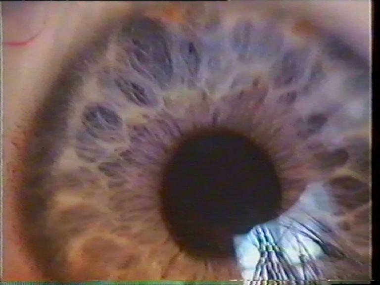 Секта абсолютной любви. Глаз (1)